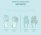 Joints diseases. Arthritis symptoms, treatment icon set. Medical infographic design