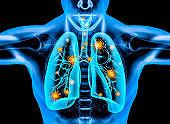 covid 19 virus inside the human body