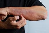 Eczema allergy skin, atopic dermatitis.