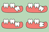 type of wisdom tooth affect to other teeth