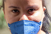 Woman with marks on her face and mask pff2 n95, protection against coronavirus in Rio de Janeiro
