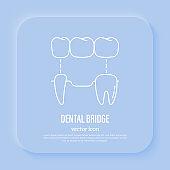 Dental bridge, tooth restoration. Dentistry, prosthesis. Thin line icon, vector illustration.