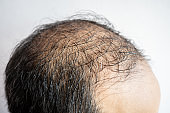 Side view of baldness men's head with thin hair on his top and forehead.