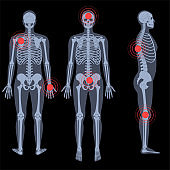 Pain4_Skeleton