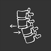 Spine dislocation chalk white icon on black background. Displacement of spinal vertebra. Accident. Spinal injury. Trauma treatment. Medical condition. Isolated vector chalkboard illustration