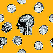MRI of the head on an orange background. Seamless pattern. The concept of timely detection of diseases of the head. Mental health.
