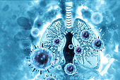 Virus and bacteria infected the Human lungs.lung disease