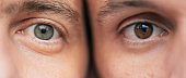 Close up photo of the different eyes in two men