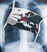 Coronavirus pandemic, white face mask with a red spots on a map of Europe is lying on lang x-ray
