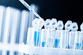 pipette and scientific laboratory test tubes in a genetic laboratory. study of a virus or vaccination.