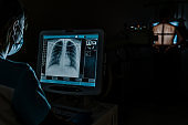 Man standing face against wall while doctor using X-Ray machine scan him in darkness
