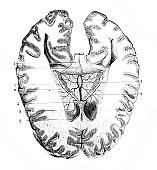 Brain in section in the old book Surgical Anatomy, by B. Anger, 1869, Paris