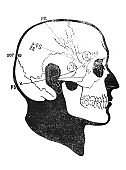 Picture of skull and brain region in the old book The Schools of Surgery, by A. Tauber, 1889, S.-Petersburg