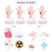 Skin burn injury treatment and stages infographic.