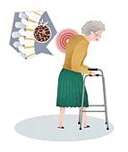 할머니, 노인, 골다공증, 고통, 질병, 건강관리