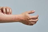 아토피피부염 (피부트러블), 피부염 (질병), 피부트러블 (질병), 아토피피부염, 피부염, 피부트러블, 긁기 (만지기), 피부과, 의료성형뷰티 (주제)