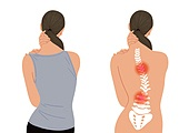 바른자세, 거북목증후군 (질병), 포즈 (몸의 자세), 요통 (질병)