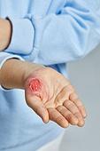 보험 (주제), 상해 (건강이상), 흉터 (피부특징), 상처 (상해), 흉터, 질병 (건강이상), 사람피부 (주요신체부분), 피부과 (생물학)