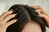 의료성형뷰티 (주제), 탈모 (질병), 비듬, 걱정 (어두운표정), 두피 (사람머리), 헤어케어 (몸단장제품), 머리카락 (주요신체부분)