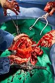 장기기증, 몸 (인간의특성), 인체내부기관 (Body Part), 심장 (인체내부기관), 질병 (건강이상), 의료보험 (보험), 수술 (치료), 의사, 병원 (의료시설)