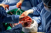 장기기증, 환자, 혈액 (생물의물질), 질병 (건강이상), 상처 (상해), 수술 (치료), 수술실, 수술도구 (의료기기), 의사, 병원 (의료시설)