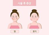 뷰티 (아름다움), 사람피부 (주요신체부분), 피부과, 타박상 (상해), 붓기, 증상