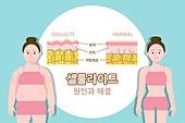 뷰티 (아름다움), 사람피부 (주요신체부분), 셀룰라이트, 비만 (건장한체격), 다이어트