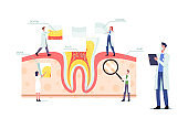 Teeth Anatomy and Structure Concept with Tiny Dentists Doctors Characters at Huge Tooth Infographics with Gum, Pulp