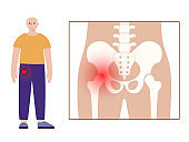 Hip pain and disease