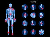 Arthritis Sets 2