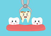 Tooth is removed by forceps in oral cavity. Cute cartoon of cavity tooth concept vector illustration. Dental treatment by dentist.