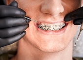 Orthodontist placing rubber bands on male patient braces.