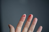 finger on his left hand is cut and bleeds with bright red blood, selective focus