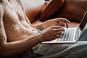 Man with scars at the skin after burn typing on laptop keyboard while working
