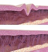 The simile of collagen and elastin fibers in aging wrinkled and young smooth skin. Medical 3D illustration.