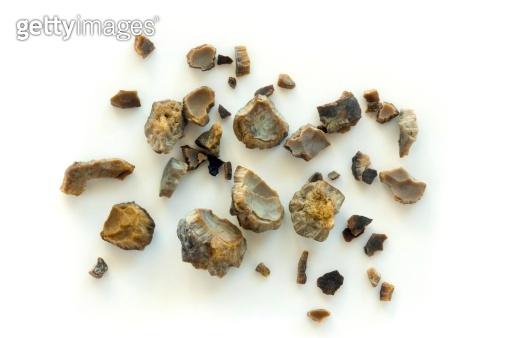 Kidney stones after ESWL intervention