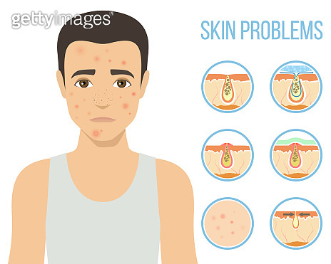 Cosmetic procedures skin care