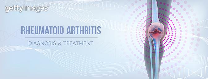 Vertical light rheumatoid arthritis Bones the of knee