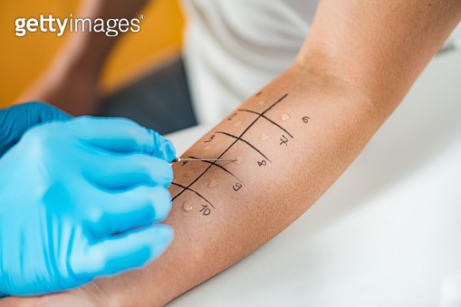 Skin Prick Allergy Testing