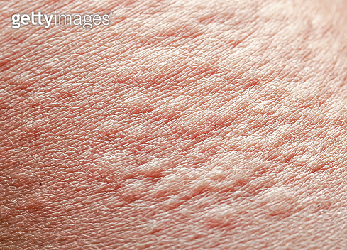 background of the texture unhealthy irritated human skin is covered with fine wrinkles ,cracked and blistered from the burn and allergies