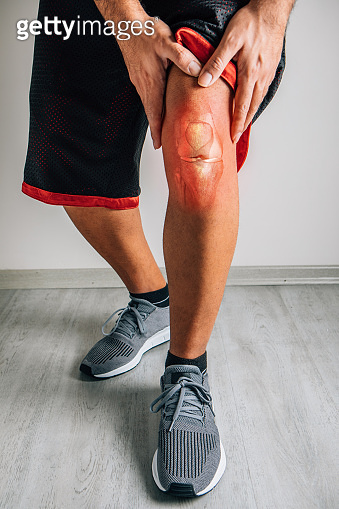 Knee injury in humans