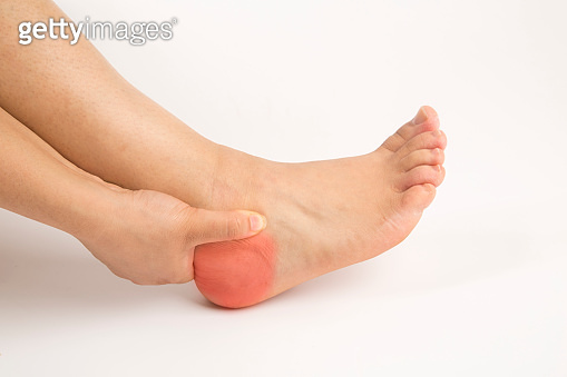 foot heel pain woman and isolated background