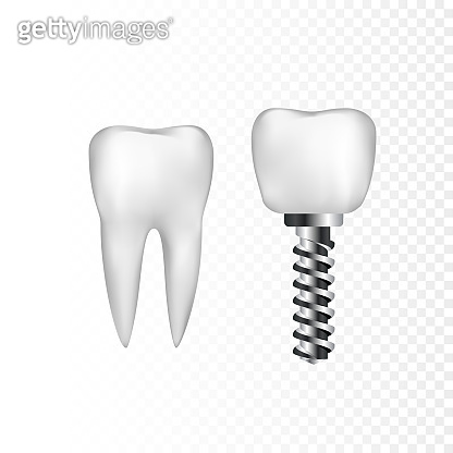 Healthy white tooth and implant with steel screw. Dentistry and dentist care. Vector illustration isolated on transparent background