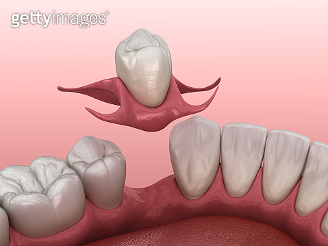 Partial removable immediate-denture type Butterfly. Replacement of one missing tooth 3D illustration