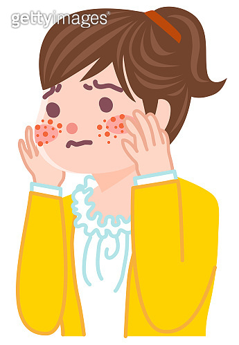 Illustration of a girl suffering from acne.
