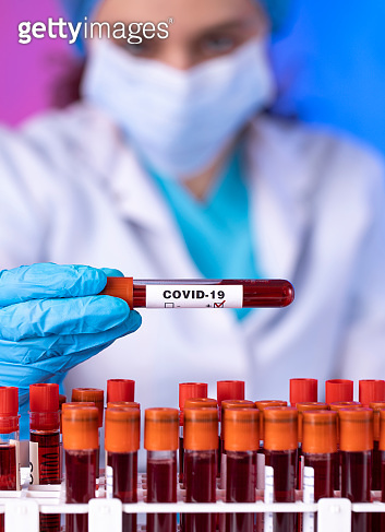 Technician holding blood tube test in the research laboratory