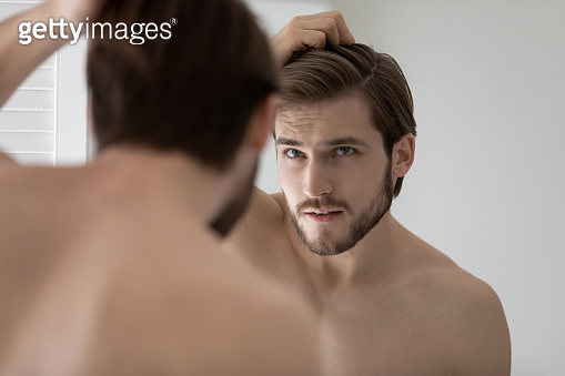 Anxious young man worried about hair loss or receding hairline
