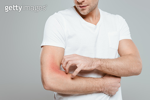 Cropped view of man scratching hand with allergy isolated on grey