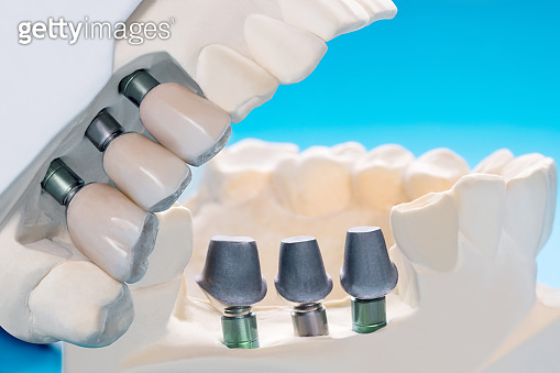 Close up implant and prosthodontic model.