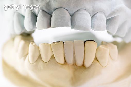 Dental maryland bridge.